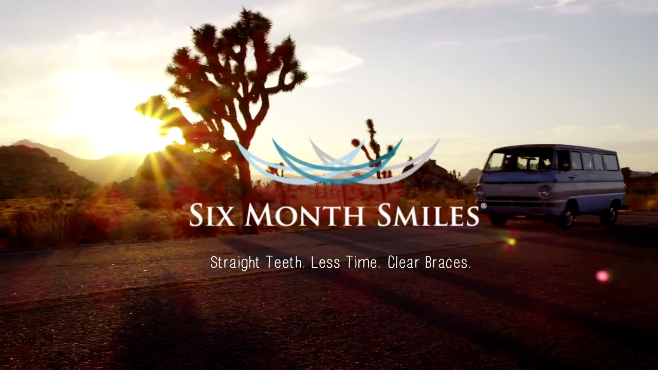 https://www.encinitascosmeticdentistry.com/wp-content/uploads/video/sixmonthsmiles